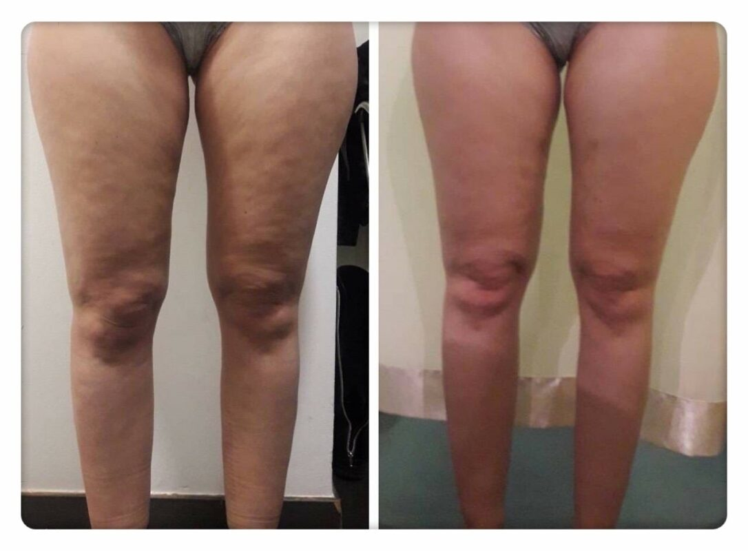 before and after madero therapy